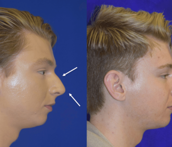 How To Make Your Nose Smaller Sized Overnight Strategies